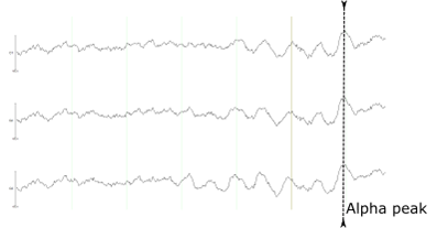 Alpha/TMS Closed Loop - Fig. 1: An idealized result for emitting a trigger at the peak of an alpha wave.